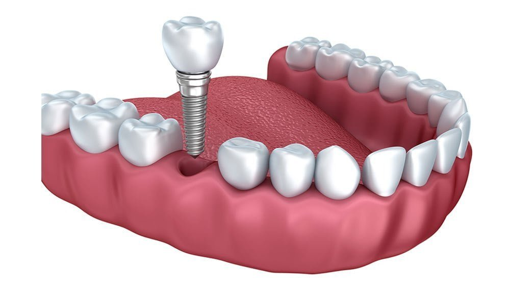 Dental Implants in Nape Dental Family, ABQ